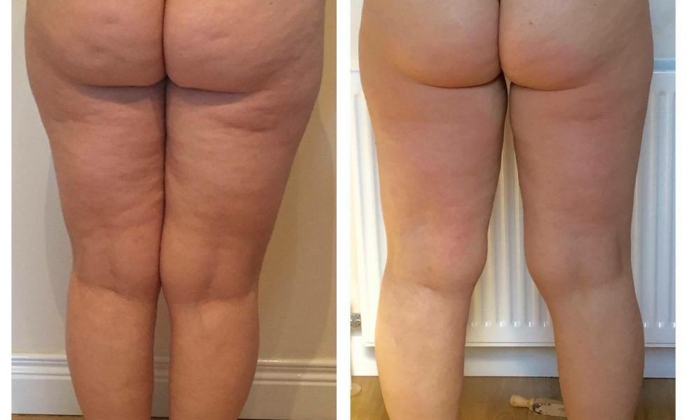 Inkfish Body LipoFirm Pro B&A Legs