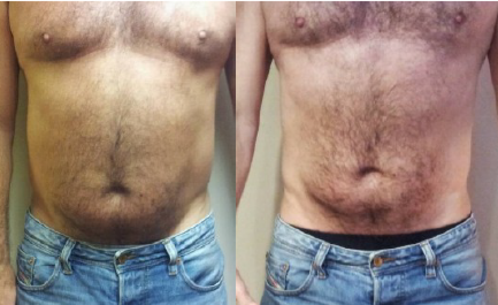 Inkfish Body LipoFirm Pro B&A_before and after_Couresty of New Dawn