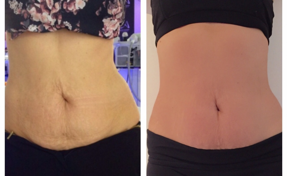 Inkfish Body LipoFirm Pro Before and After 3 sessions_The Beautician
