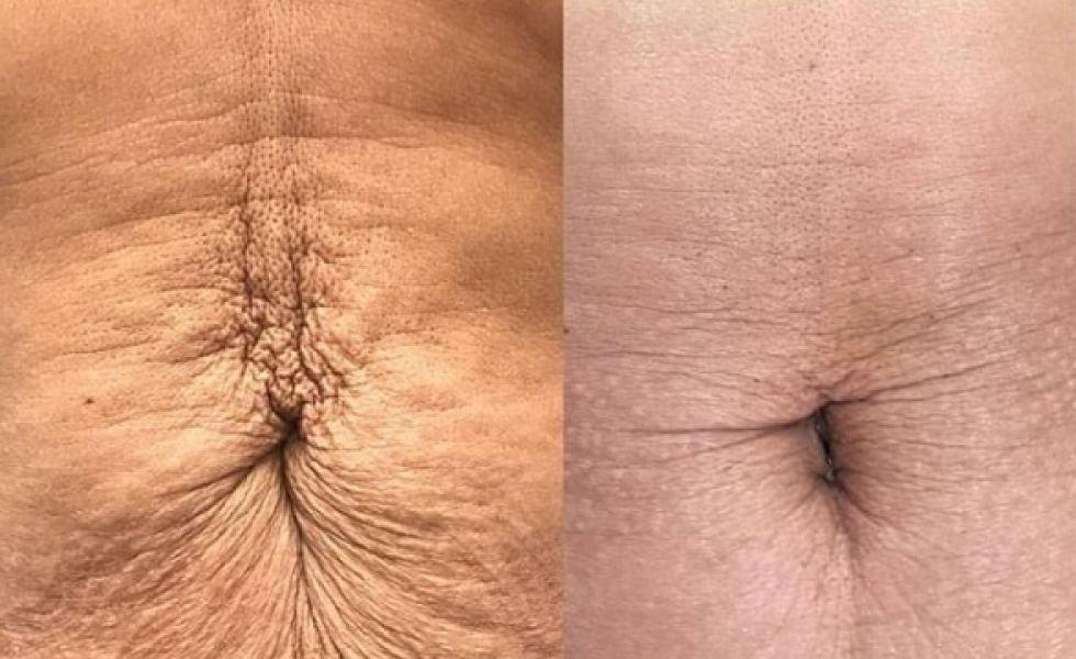 Inkfish Body LipoFirm Pro _SKinTightening_BeforeandAfter_4sessions