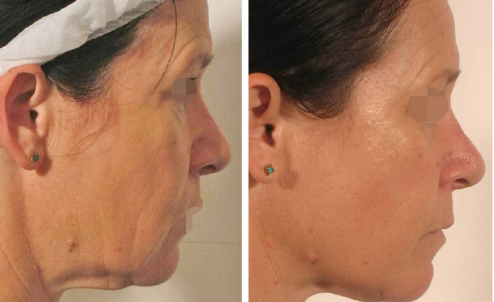 Inkfish Body LipoFirm Pro face B&A2